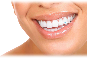 dental treatment in tirunelveli